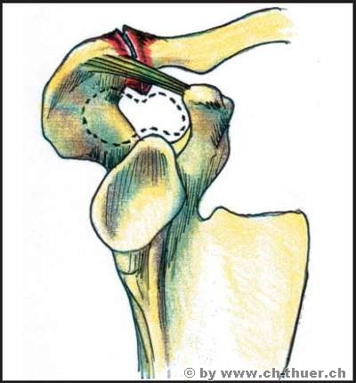 www.ch-thuer.ch -- Disorders and injuries of the rotator cuff ...